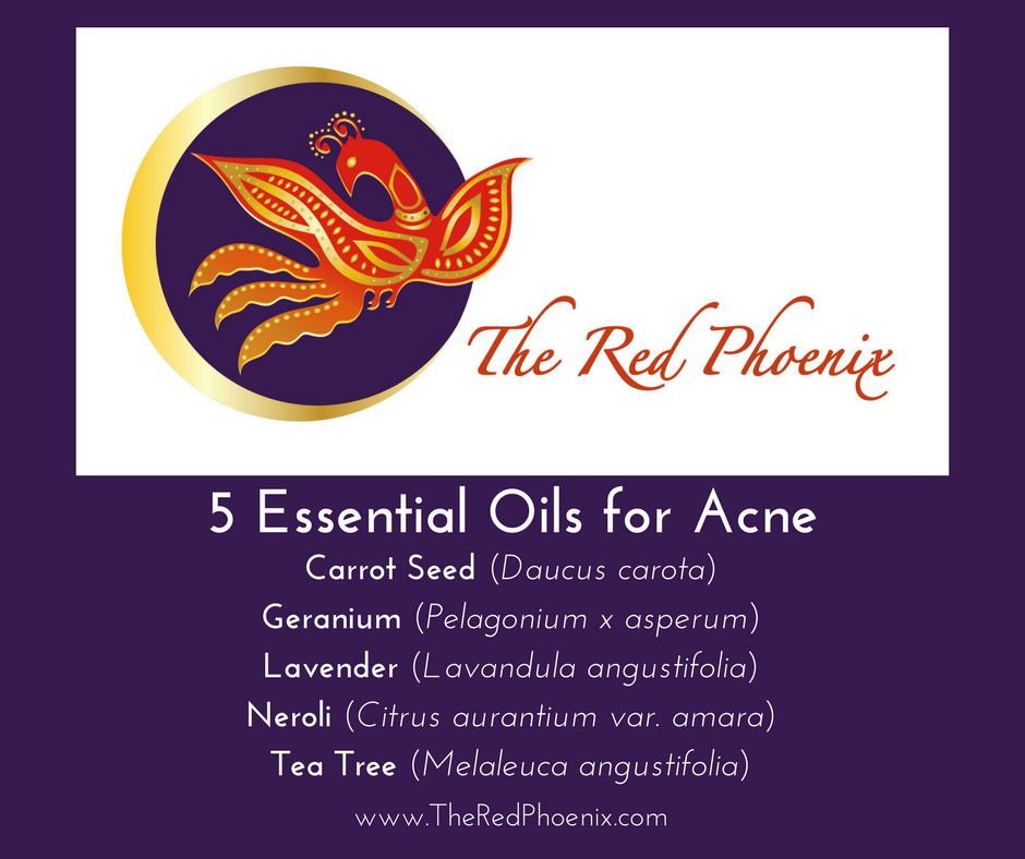 Stop It — Don't Pop It!  Five Essential Oils for Acne